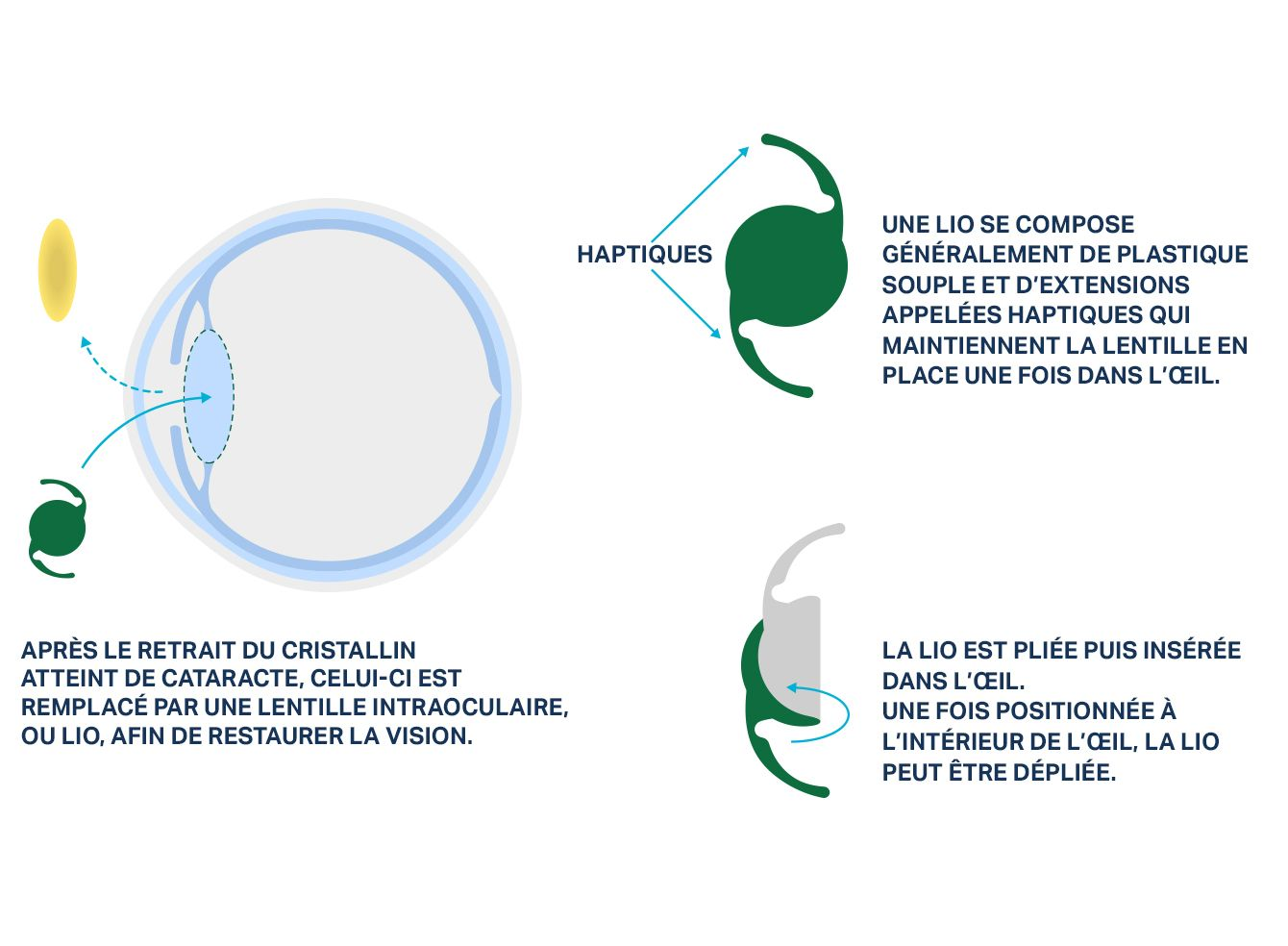 Visuel d'un œil montrant comment une lentille intraoculaire (LIO) remplace le cristallin lors d'une chirurgie de la cataracte.