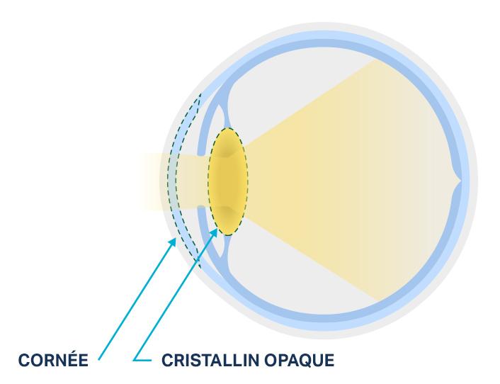 Figure représentant un cristallin sain et un cristallin atteint de cataracte