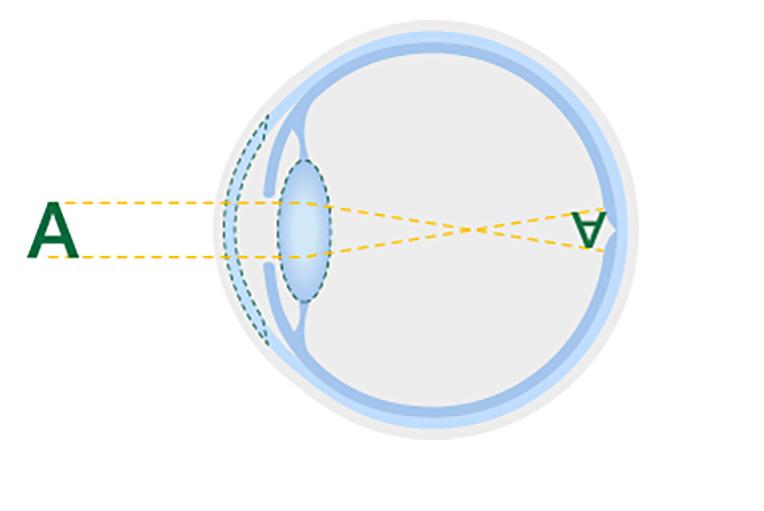 Figure représentant un cristallin sain