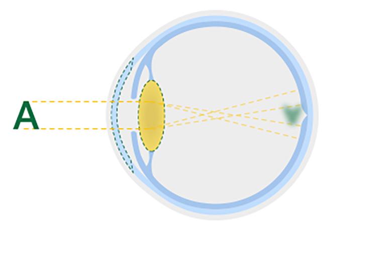 Figure représentant un cristallin atteint de cataracte