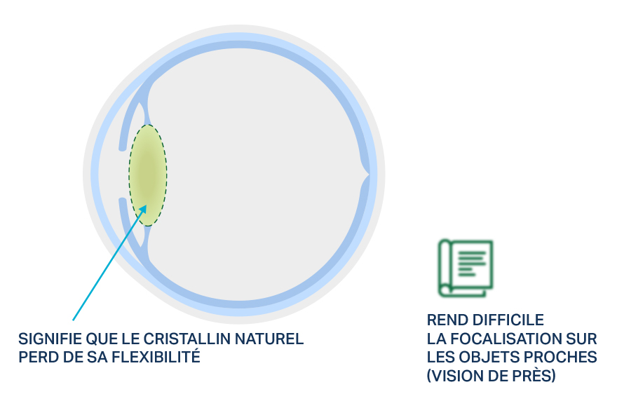 Visuel d'un cristallin naturel avec presbytie