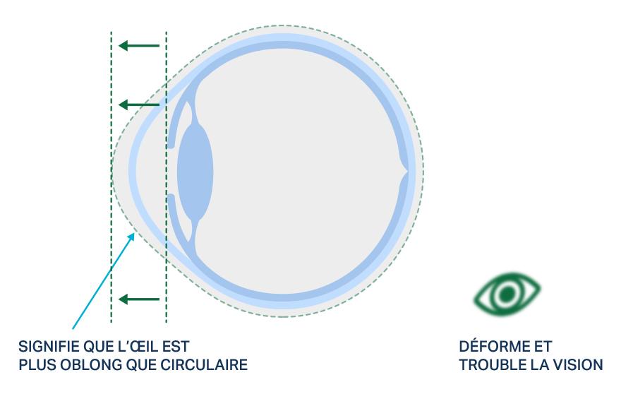 Visuel montrant la forme d'un œil avec astigmatisme